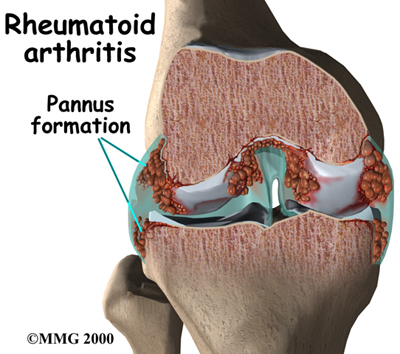 Same-day double knee replacement safe for select rheumatoid Arthritis patients
